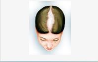 hajbeültetés ár